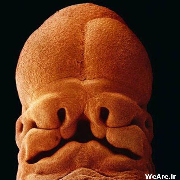 هفته پنجم: تقریبا 9 میلی متر. به وضوح صورت جنین با سوراخ چشم و بینی و دهان مشخص است.