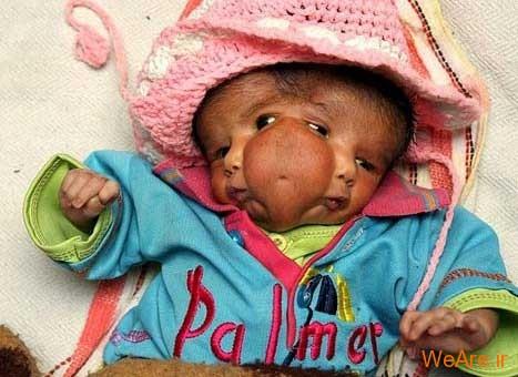 10 تولد عجیب و غیر معمول جهان - شرایط حاد پزشکی (12)
