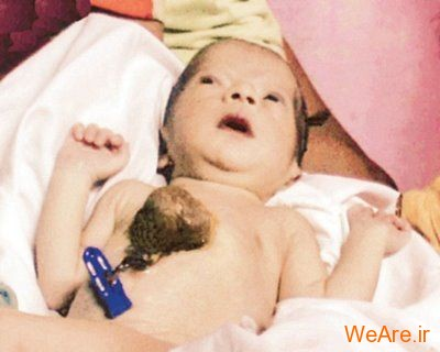 10 تولد عجیب و غیر معمول جهان - شرایط حاد پزشکی (9)