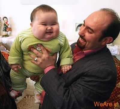 10 تولد عجیب و غیر معمول جهان - شرایط حاد پزشکی (8)