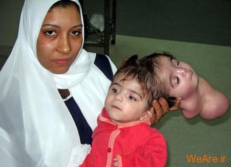 10 تولد عجیب و غیر معمول جهان - شرایط حاد پزشکی (7)