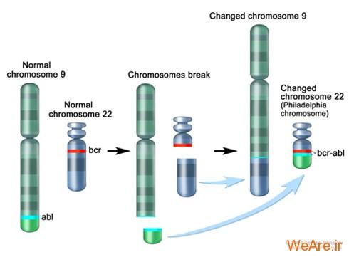 سرطان خون وابسته به مغز استخوان مزمن (Chronic Myelogenous (or Myeloid) Leukemia)