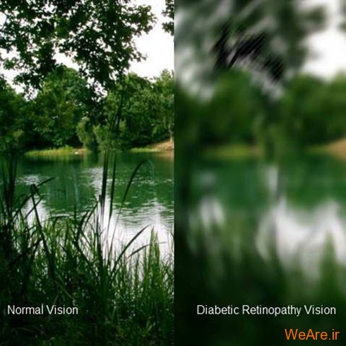 رتینوپاتی دیابتی (Diabetic Retinopathy)