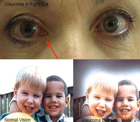 گلوکوم یا آب سیاه (Glaucoma)