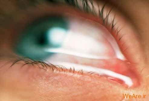اشک یا آب چشم