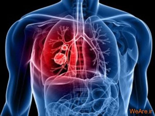 بیماری انسداد ریه مزمن (Chronic Obstructive Pulmonary Disease)