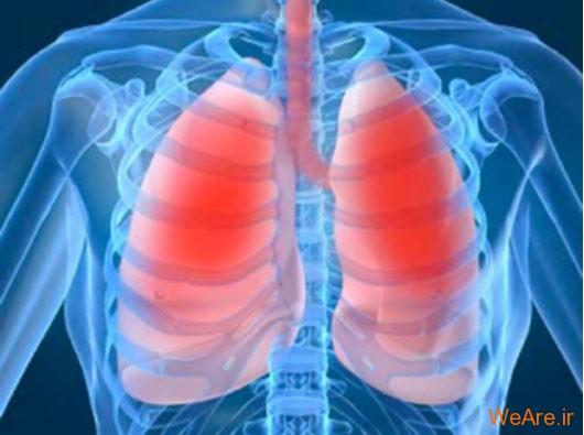 عفونت های تنفسی تحتانی (Lower Respiratory Infections)