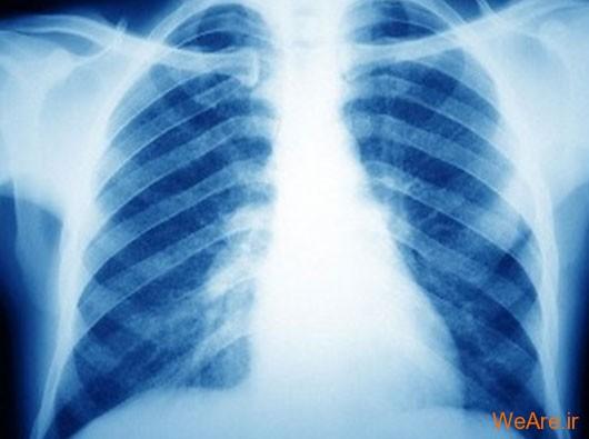 سل (Tuberculosis)