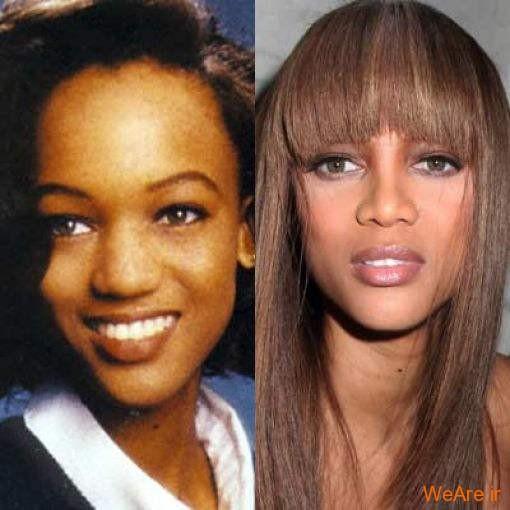 بازیگران هالیوودی قبل و بعد از عمل جراحی پلاستیک (6)