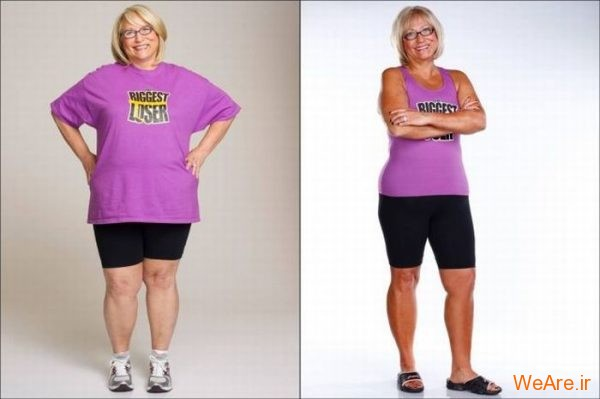 قبل از چاقی, بعد از چاقی,قبل از لاغری, بعد از لاغر شدن (10)