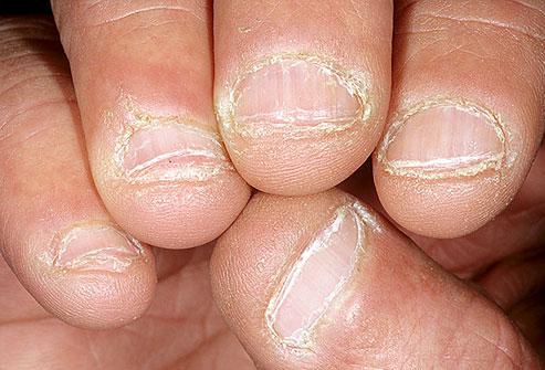 dermnet_photo_of_bitten_nails101010