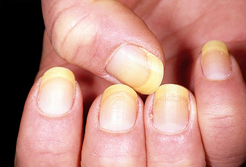 dermnet_photo_of_yellow_nails444