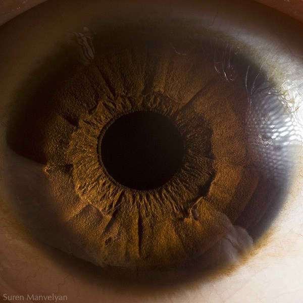 نمای نزدیک چشم انسان (4)