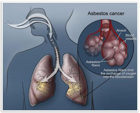 asbestos-cancer