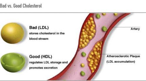 good-and-bad-cholesterol