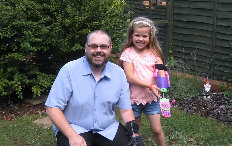 3d-printed-prosthetic-arm-stephen-davies-enable-isabella-5