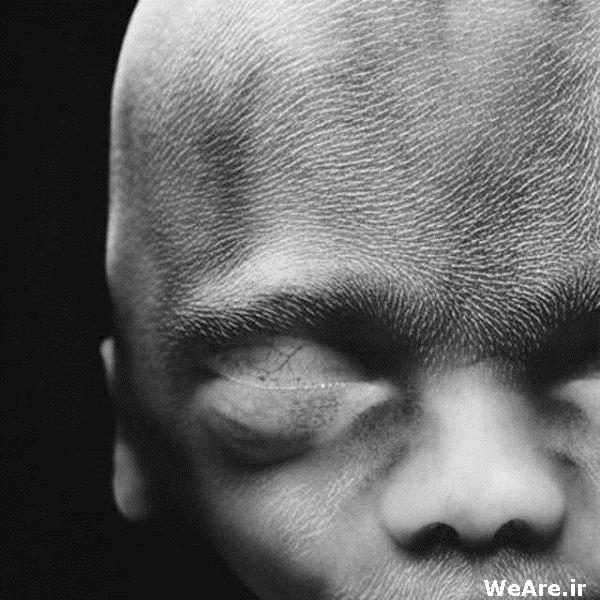 هفته   نوزدهم. هفته بیستم. تقریبا 20 سانتی متر. موهای پشمالویی بر روی سر و  صورت   نوزاد ایجاد می شود. این موها را با نام لانوگو (lanugo) می شناسند.