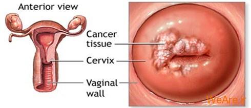 سرطان دهانه رحم (Cervical Cancer)