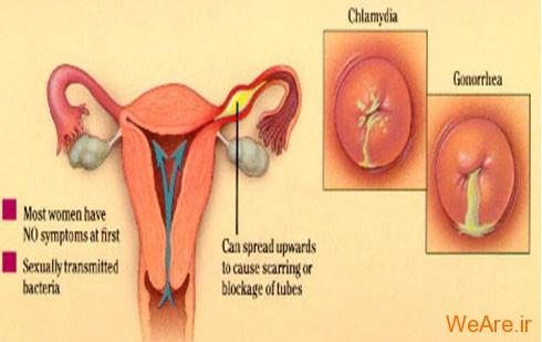 کلامیدیا (Chlamydia)