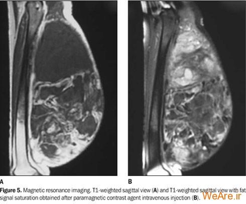 تومور بدخیم بافت چربی (Liposarcoma)