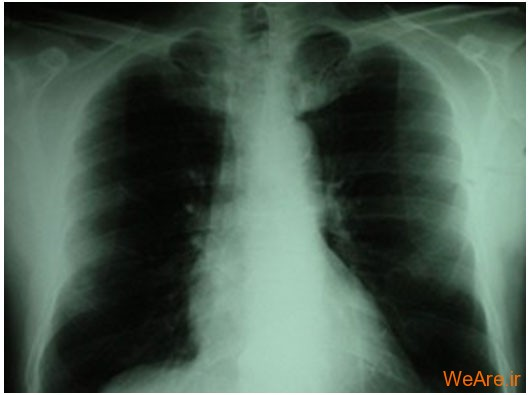 سرطان نای / برونش / ریه (Cancer of Trachea/Bronchus/Lung)