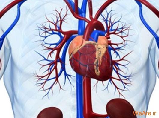 بیماری سکته مغزی (Cerebrovascular Disease)
