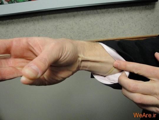 وضع و ترتیب ماهیچه ها (Musculature)