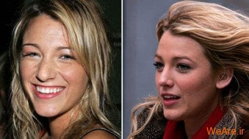 بازیگران هالیوودی قبل و بعد از عمل جراحی پلاستیک (1)