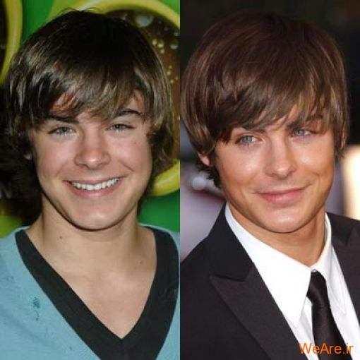 بازیگران هالیوودی قبل و بعد از عمل جراحی پلاستیک (2)
