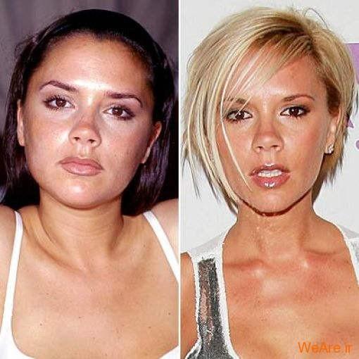 بازیگران هالیوودی قبل و بعد از عمل جراحی پلاستیک (4)