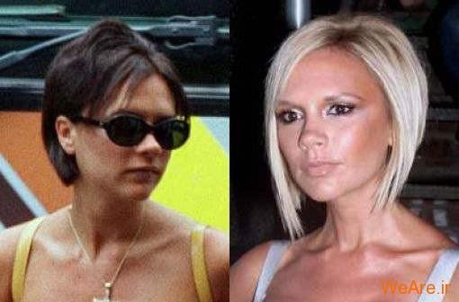بازیگران هالیوودی قبل و بعد از عمل جراحی پلاستیک (5)