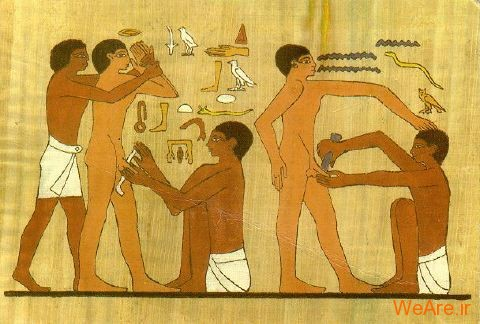 قدیمی ترین نقاشی یافت شده از ختنه در مصر باستان یافت شدهاست. نقاشی مربوط به ۲۰۰۰ تا ۲۳۵۰ سال قبل از میلاد میباشد.