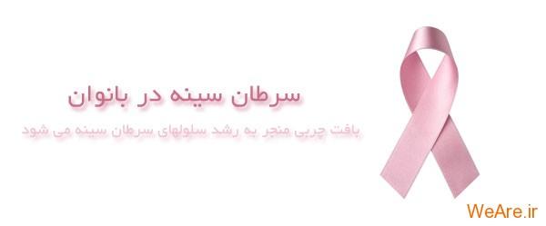 سرطان سینه در بانوان