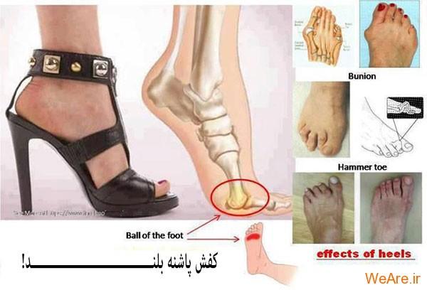 کفش پاشنه بلند نپوشید؟ هیچــــــوقت!