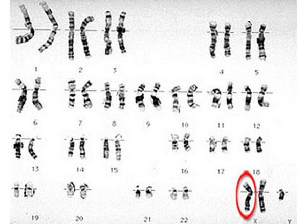 سندروم کلاین فلتر چیست؟