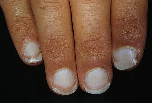 dermnet_photo_of_white_nails333