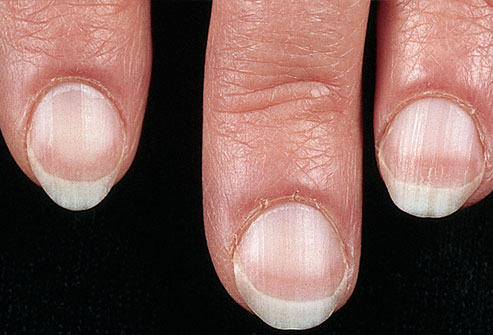 mh_photo_of_pale_fingernails 222