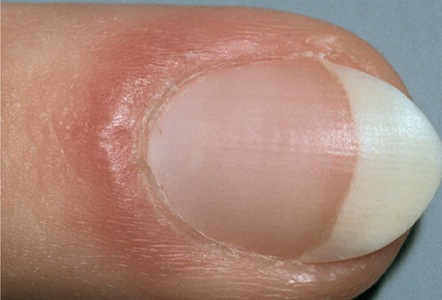 mh_photo_of_red_puffy_nail_fold888