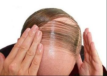 تحلیلی جامع بر داروهای درمان ریزش مو و طاسی