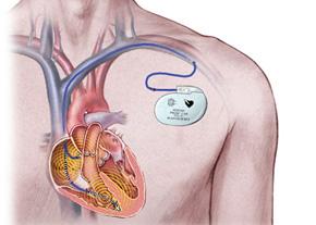 شارژ بی سیم باتری قلب