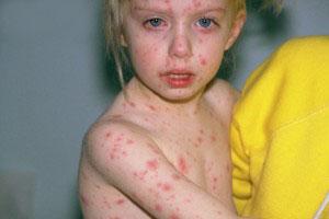 کشنده ترین بیماری ها و همه گیری های جهان!