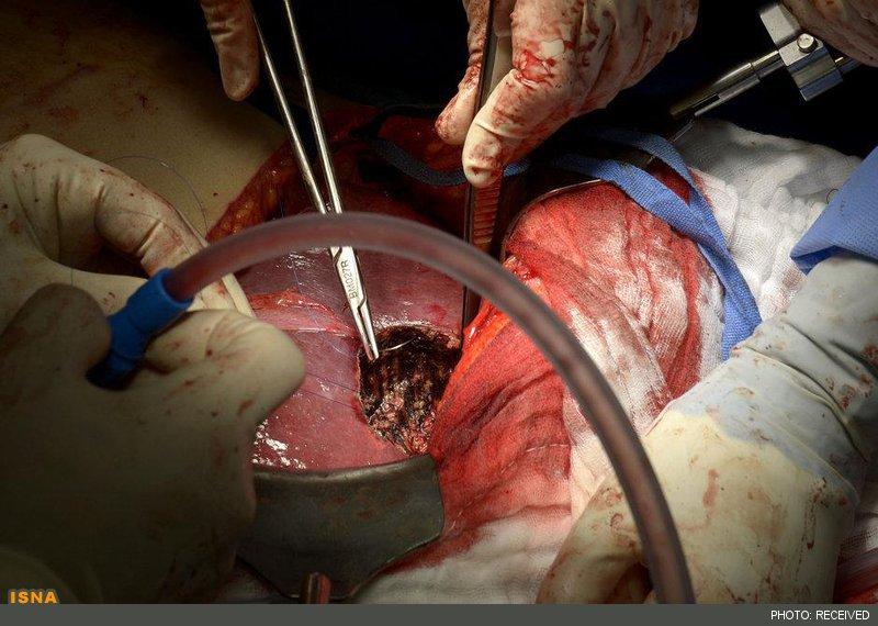آیا کبدی که در معرض بیماری و جراحی قرار گرفته، می تواند خود را ترمیم کند؟