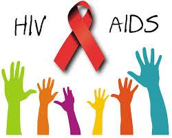 اچ آی وی (HIV) اهلی می شود؟