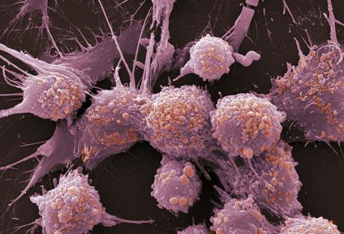 واکنش گروه های مختلف خونی به بروز سرطان