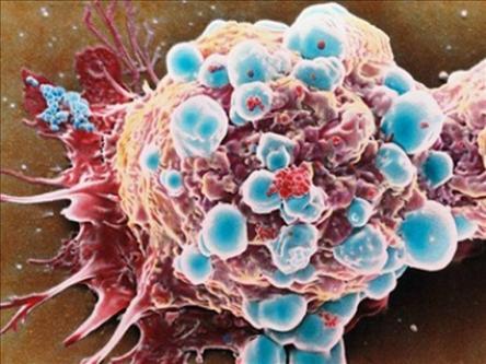 معمای میتوکندری ها در یک سلول سرطانی