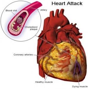 Cholesterol-297x300