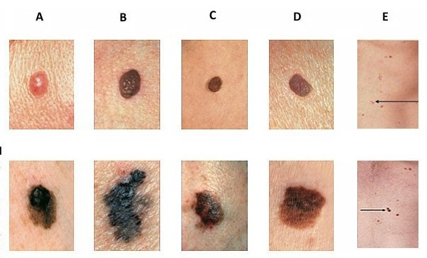 abcde-skin-cancer-chart-636