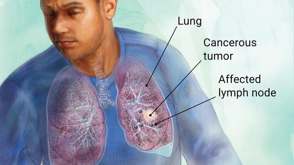 سرطان ریه: عامل اصلی مرگ زنان ثروتمند