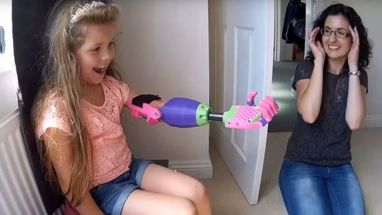 ۳d-printed-prosthetic-arm-stephen-davies-enable-isabella-7
