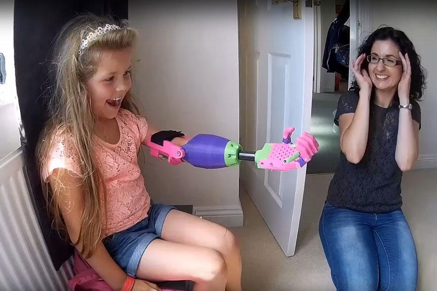 ساخت دست مصنوعی متحرک برای دختر ۸ ساله با استفاده از پرینتر سه بعدی
